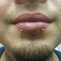 Double Lip